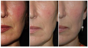 Acne littekens behandelen